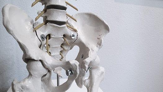 spit hernia skelet onderrug
